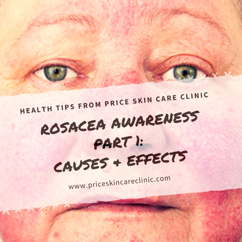 Rosacea Awareness Series  Part 1: Causes & Effects