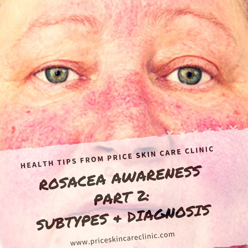 Rosacea Awareness Series Part 2: Subtypes And Diagnosis