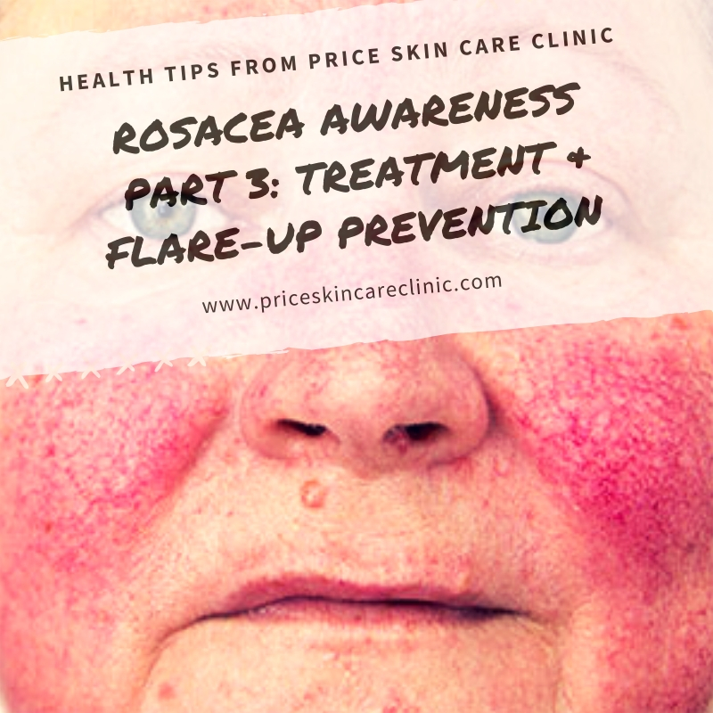 Rosacea Awareness Series  Part 3: Living With Rosacea: Flare-Up Prevention